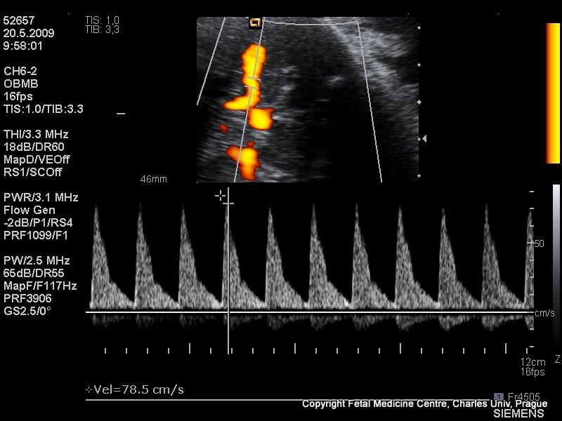 měření průtoků mozkovou arterií